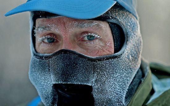 美国rtys_美国极寒天气下人体结冰现象